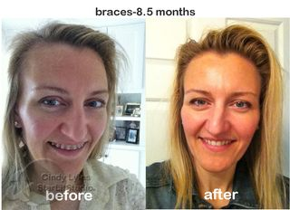 Braces before & after
